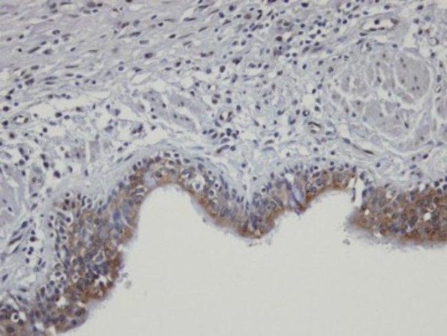 anti-SHKBP1, Polyclonal, Novus Biologicals 0.1mg; Unlabeled:Life Sciences
