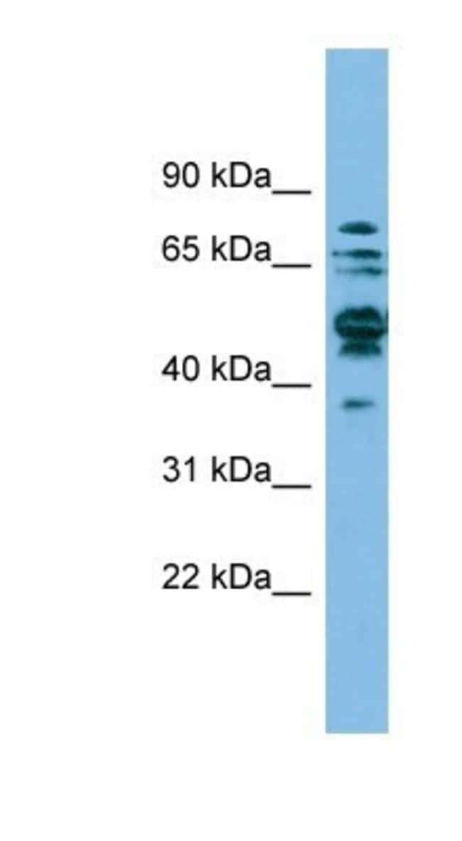 SHMT1 Rabbit anti-Human, Polyclonal, Novus Biologicals 100µL; Unlabeled:Life
