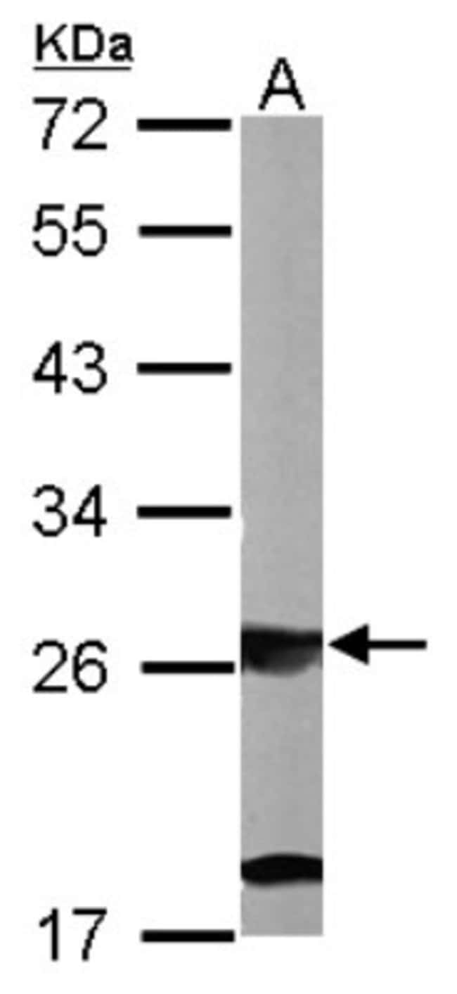 Ribosome maturation protein SBDS Rabbit anti-Human, Mouse, Polyclonal,