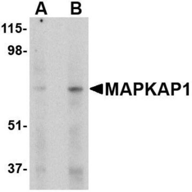 anti-Sin1/MAPKAP1, Polyclonal, Novus Biologicals 0.1mg; Unlabeled:Life