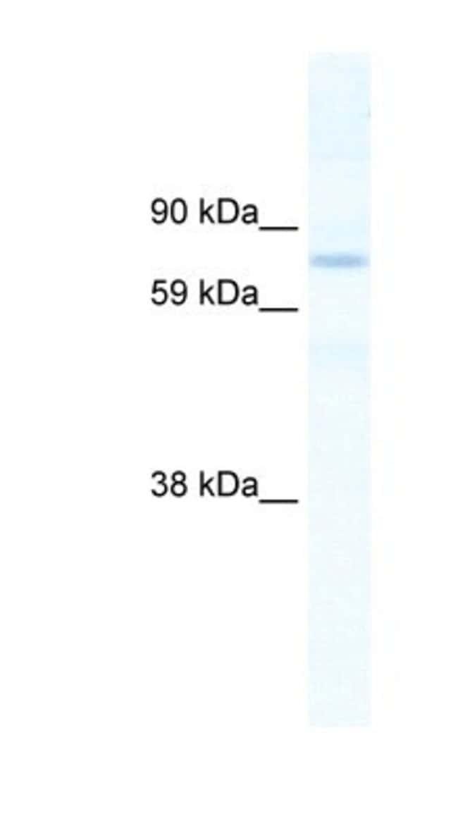 SIN3B Rabbit anti-Mouse, Polyclonal, Novus Biologicals 20µL; Unlabeled