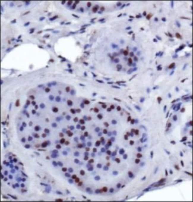 anti-SIRT6, Polyclonal, Novus Biologicals:Antibodies:Primary Antibodies