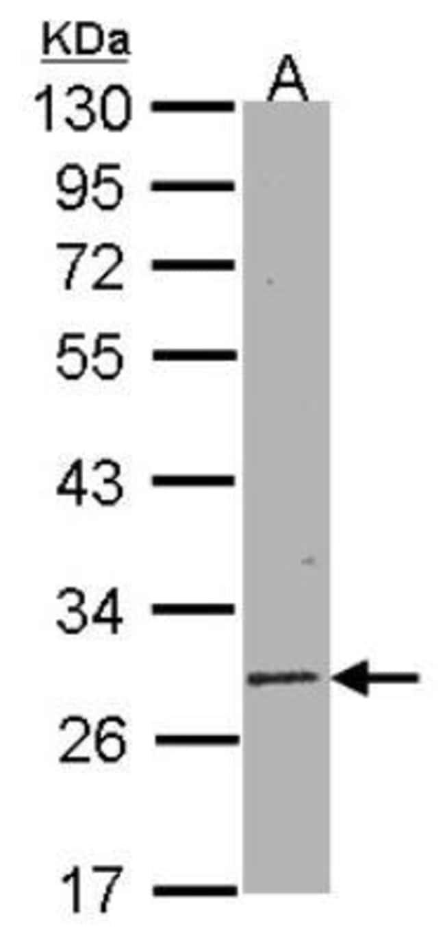 anti-Sirtuin 3/SIRT3, Polyclonal, Novus Biologicals 0.1mg; Unlabeled:Life