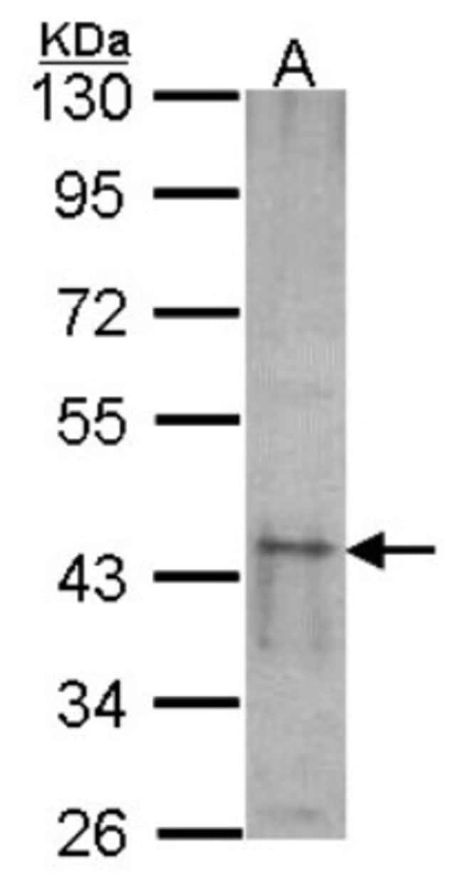 anti-SKAP55, Polyclonal, Novus Biologicals 0.1mg; Unlabeled:Antibodies