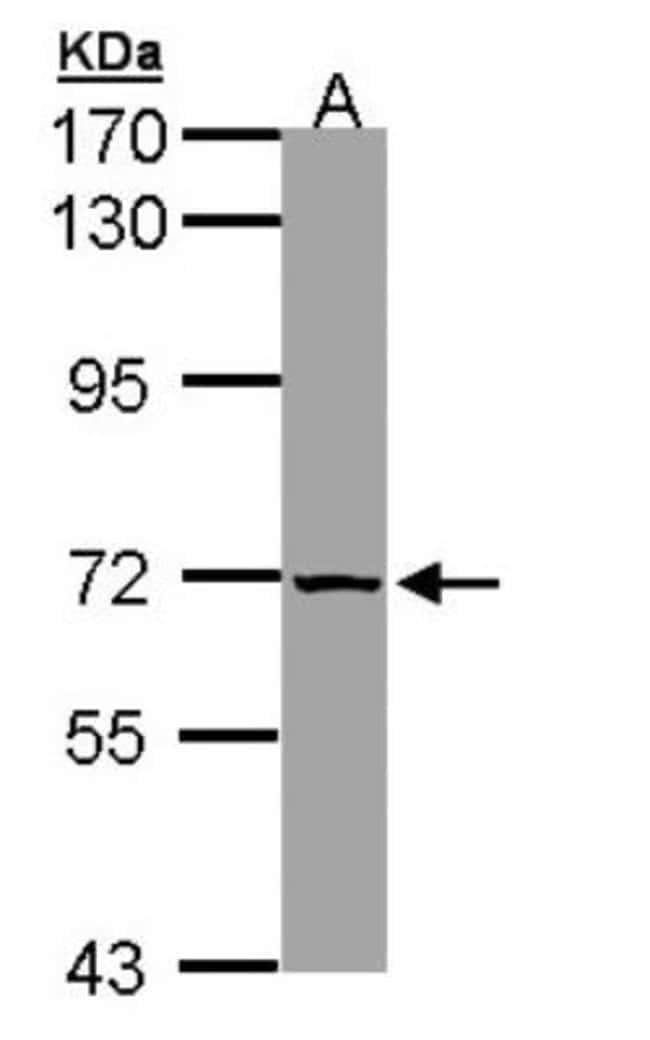 anti-SLC25A13, Polyclonal, Novus Biologicals 0.1mL; Unlabeled:Life Sciences