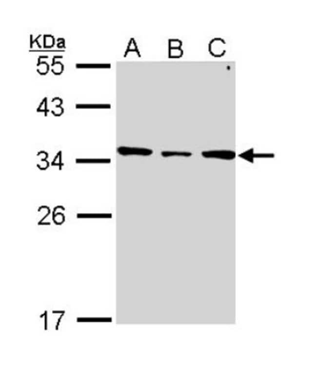 anti-SLC25A22, Polyclonal, Novus Biologicals 0.1mg; Unlabeled:Antibodies
