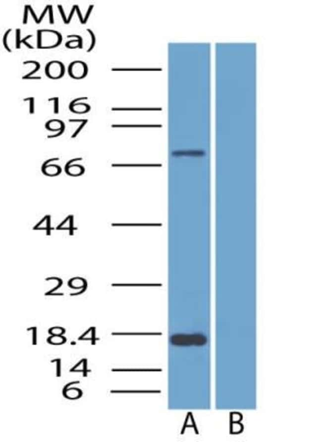anti-SLC28A3, Polyclonal, Novus Biologicals:Antibodies:Primary Antibodies