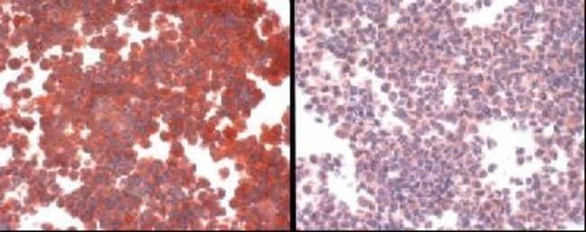 anti-SLC31A1/CTR1, Polyclonal, Novus Biologicals:Antibodies:Primary Antibodies