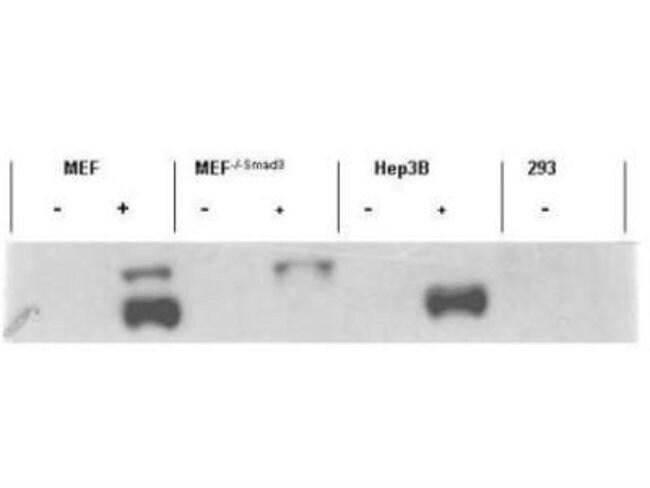 anti-Smad3 (p Ser423, p Ser425), Polyclonal, Novus Biologicals 0.1mg; Unlabeled:Life