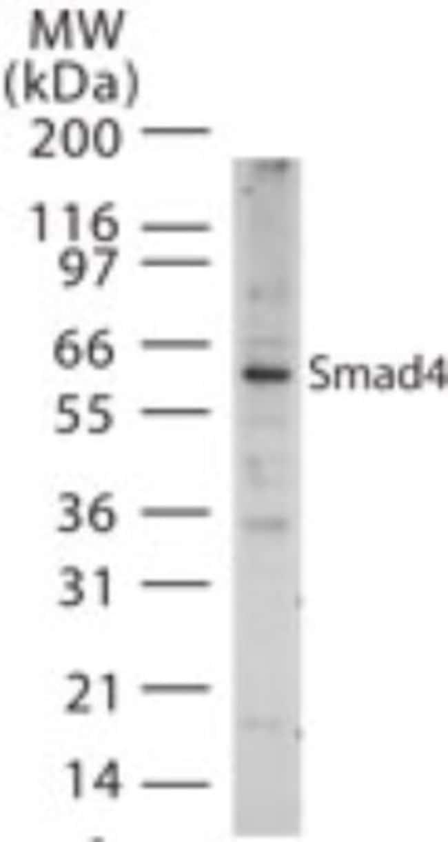 anti-Smad4, Polyclonal, Novus Biologicals:Antibodies:Primary Antibodies
