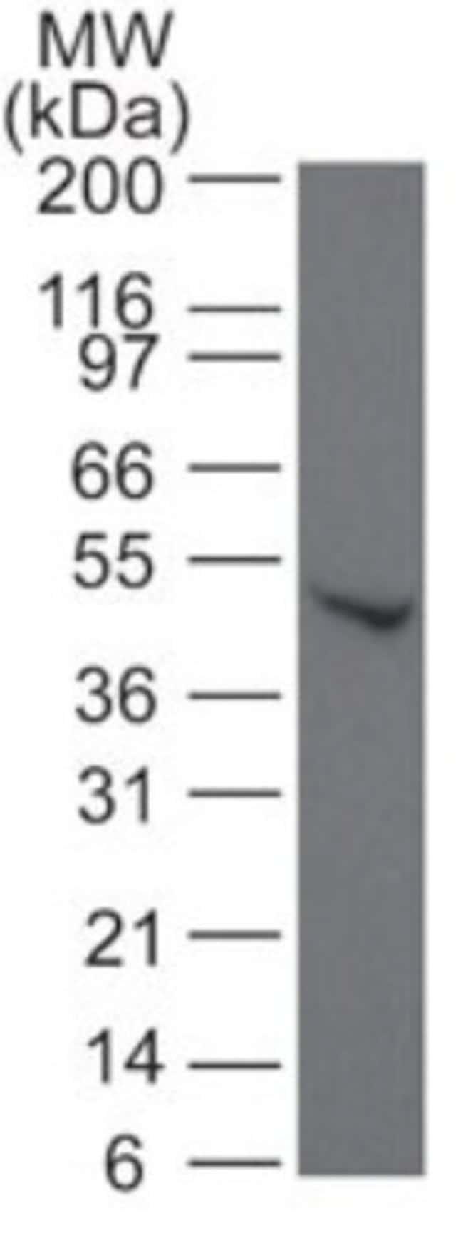 anti-SMAD6, Polyclonal, Novus Biologicals:Antibodies:Primary Antibodies