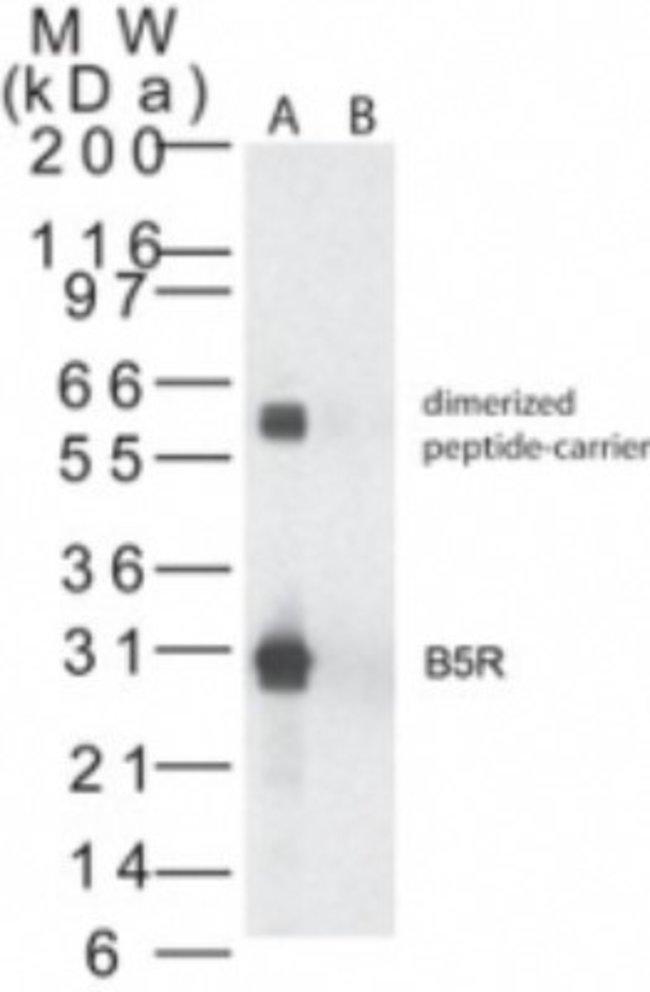 anti-Smallpox B5R, Polyclonal, Novus Biologicals:Antibodies:Primary Antibodies