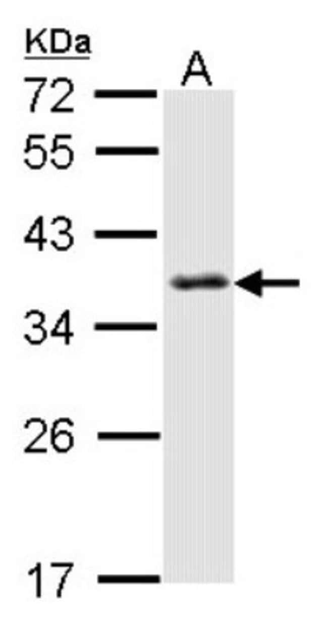 anti-SMN, Polyclonal, Novus Biologicals 0.1mg; Unlabeled:Antibodies