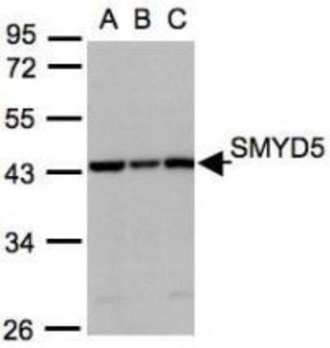 anti-SMYD5, Polyclonal, Novus Biologicals 0.1mL; Unlabeled:Life Sciences