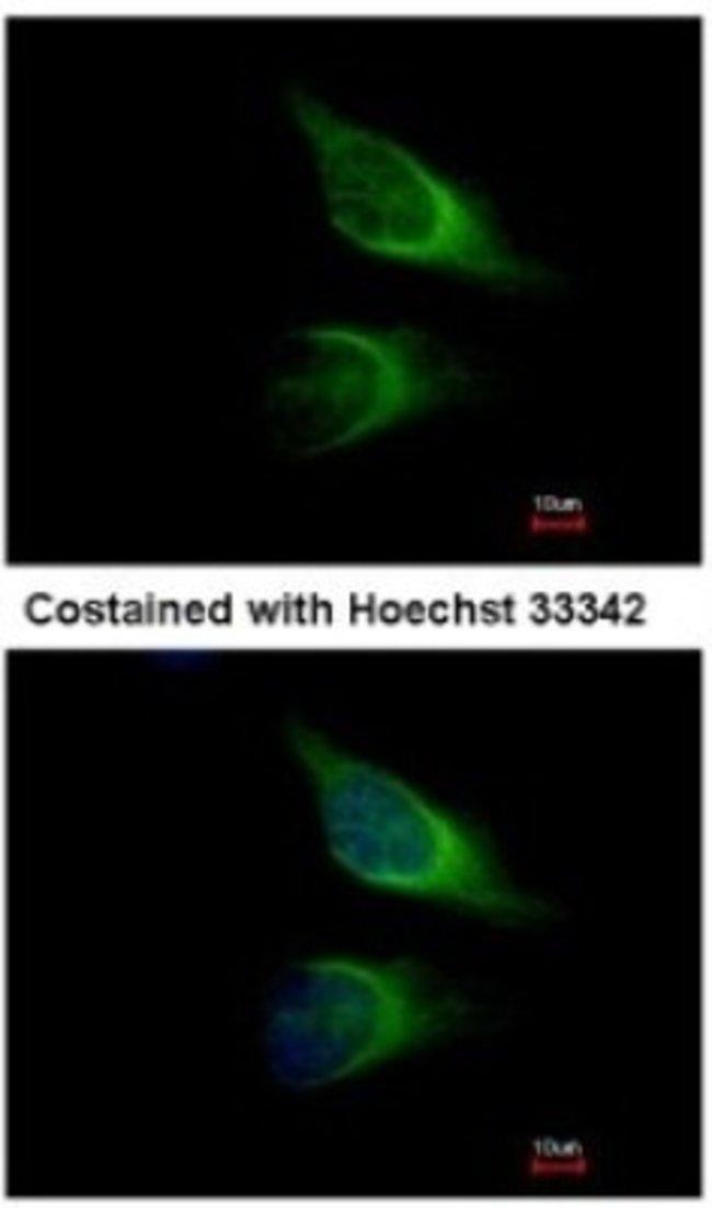 anti-SNAP23, Polyclonal, Novus Biologicals 0.1mg; Unlabeled:Life Sciences