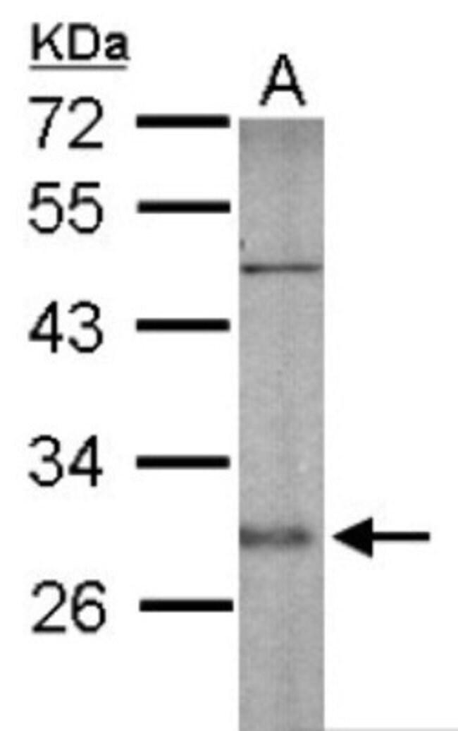 anti-SNAP25, Polyclonal, Novus Biologicals 0.1mL; Unlabeled:Life Sciences