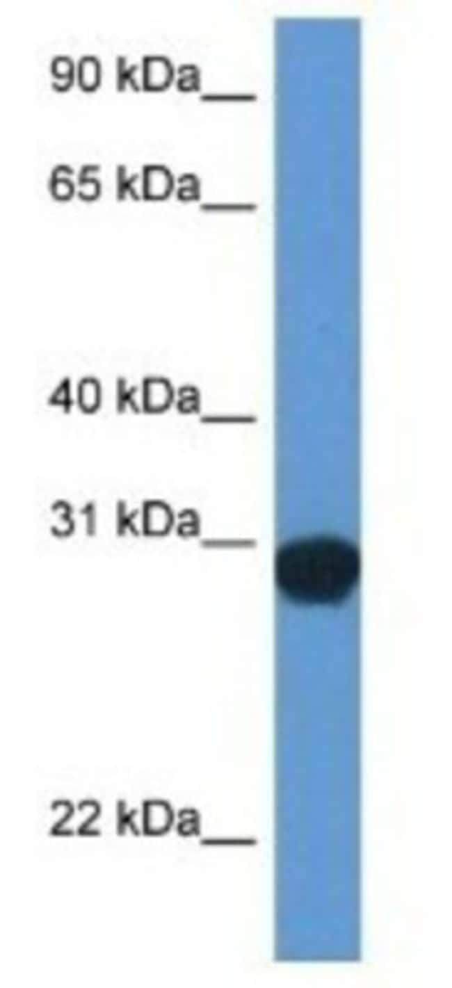 SNAP29 Rabbit anti-Rat, Polyclonal, Novus Biologicals 20µL; Unlabeled
