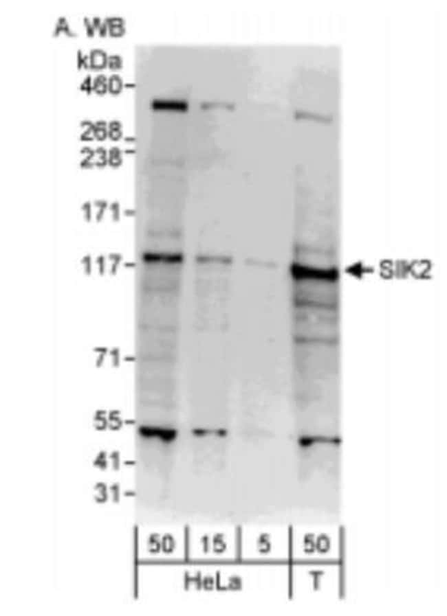 anti-SNF1LK2/SIK2, Polyclonal, Novus Biologicals 0.1mg; Unlabeled:Life