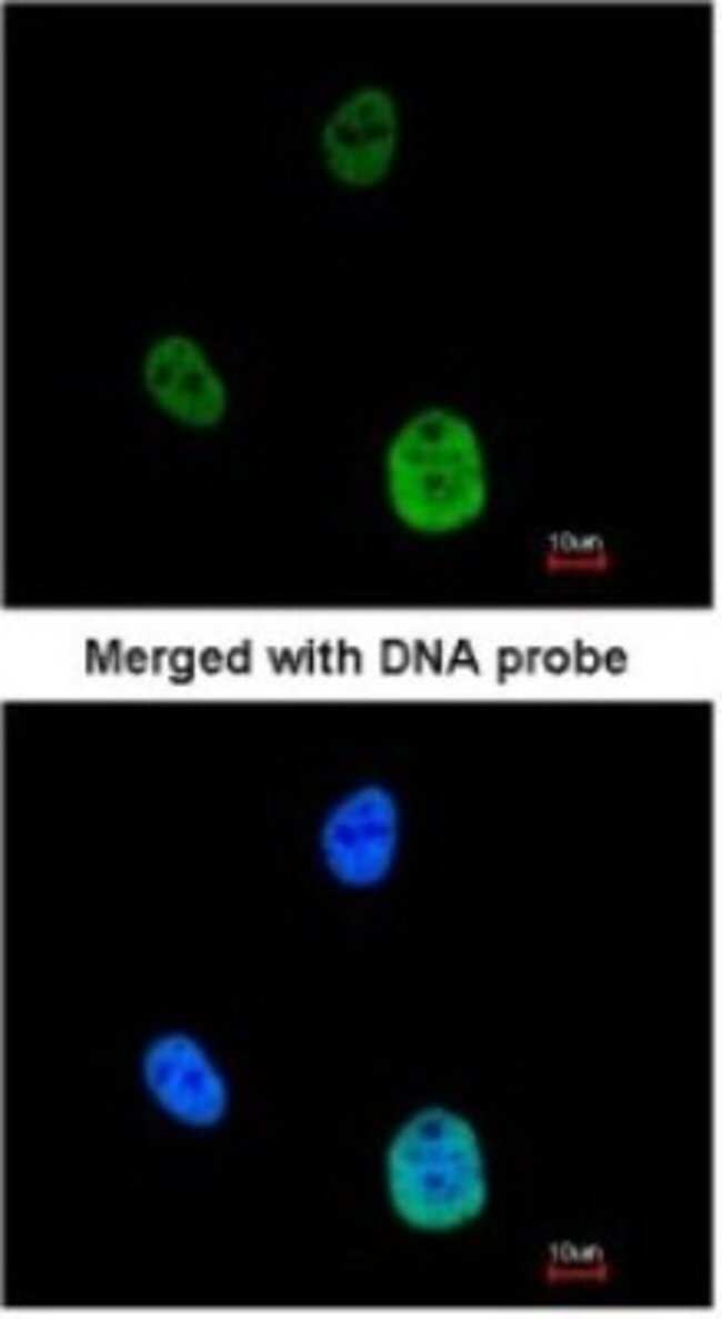 anti-SNRK, Polyclonal, Novus Biologicals 0.1mL; Unlabeled:Life Sciences