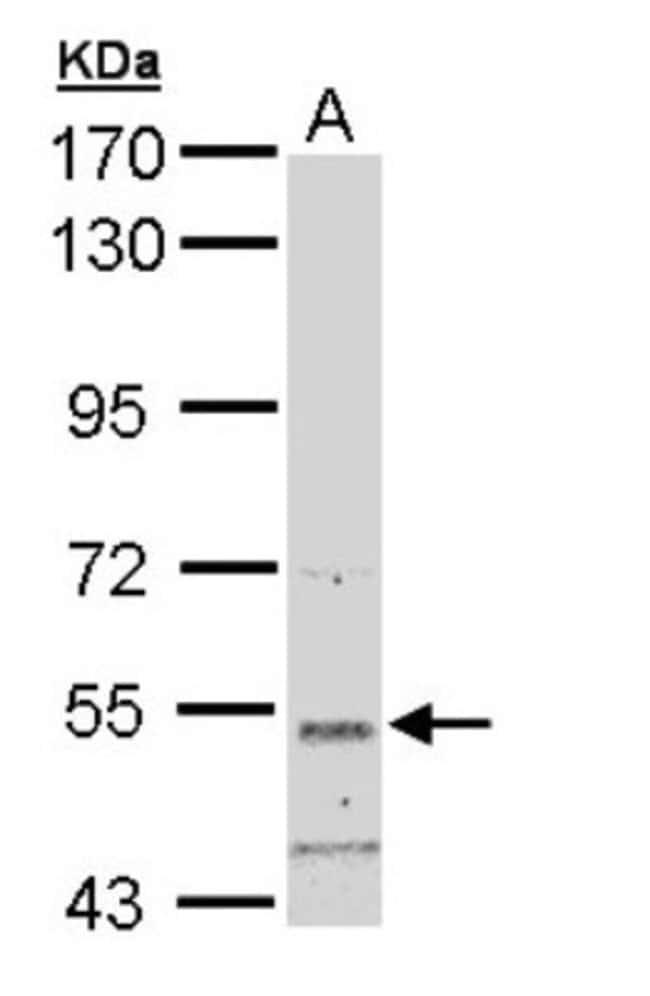 anti-SNTB2, Polyclonal, Novus Biologicals 0.1mL; Unlabeled:Life Sciences