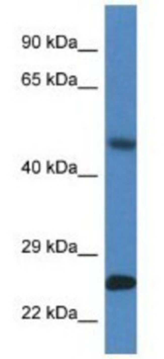 SNX10 Rabbit anti-Mouse, Polyclonal, Novus Biologicals 100µL; Unlabeled:Life