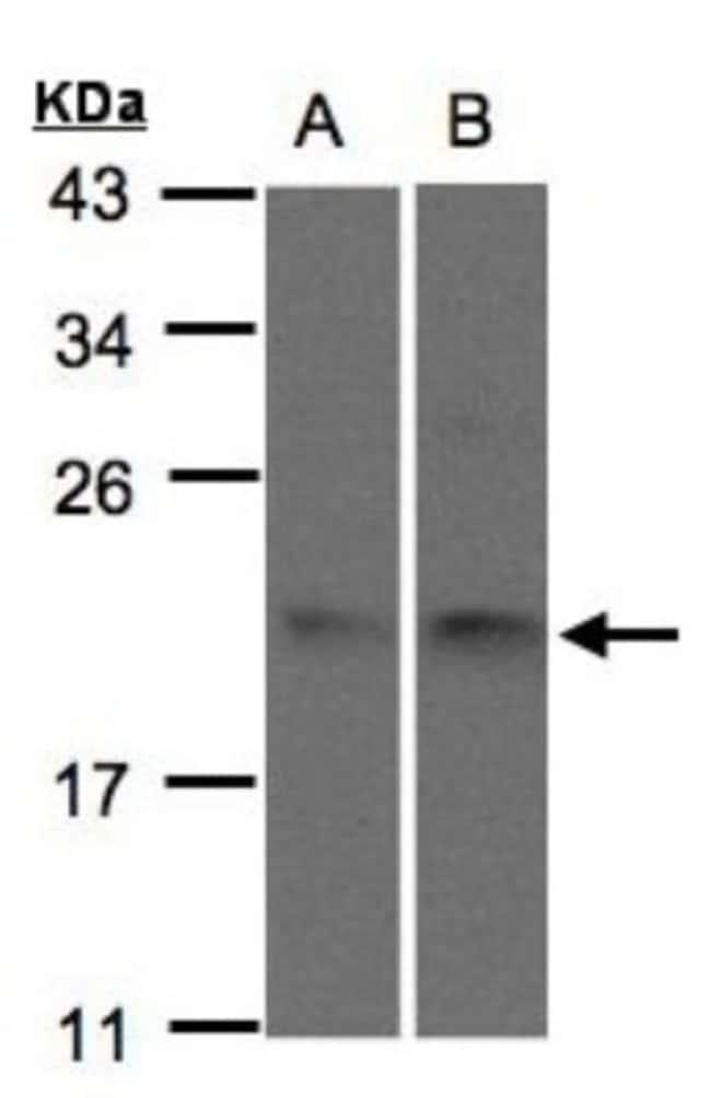 anti-SNX12, Polyclonal, Novus Biologicals 0.1mg; Unlabeled:Life Sciences