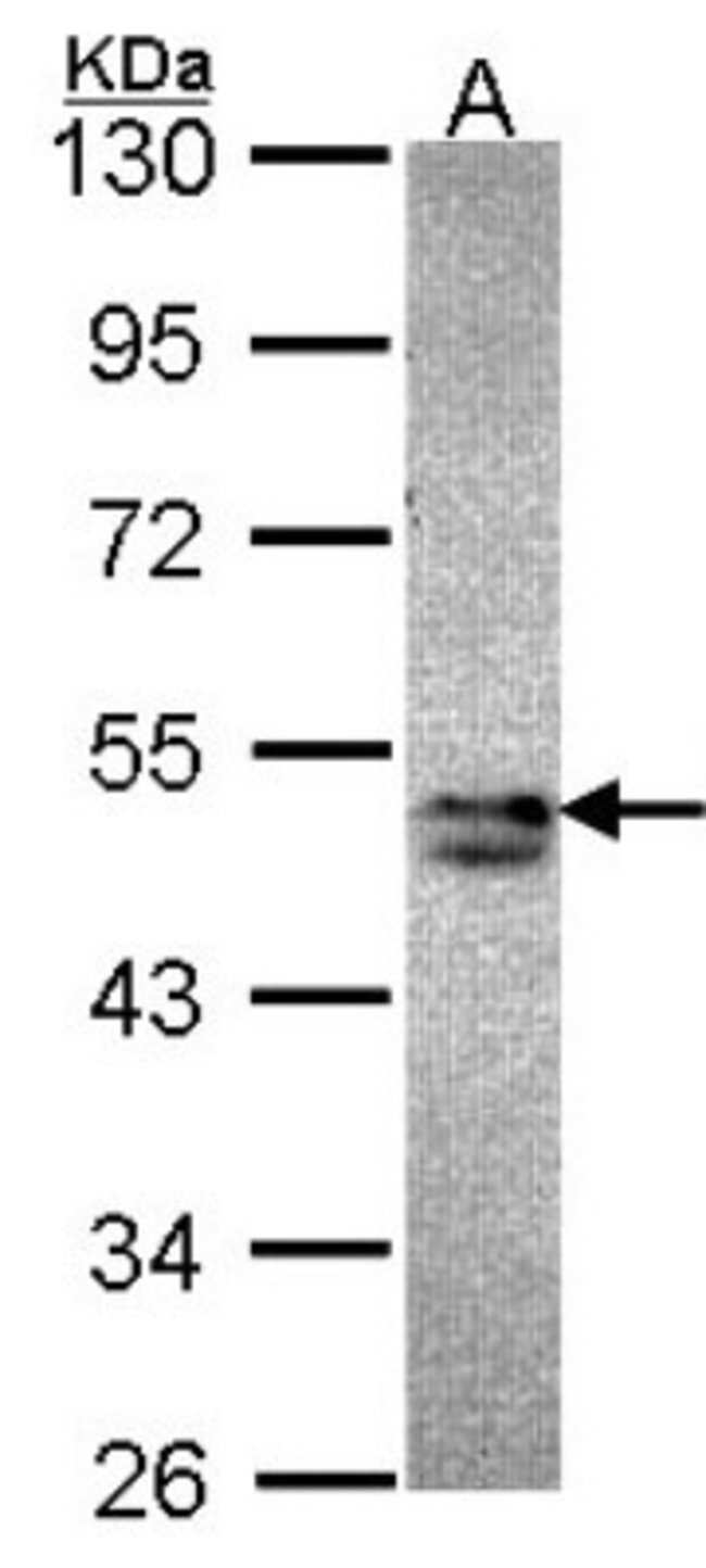 anti-SNX15, Polyclonal, Novus Biologicals 0.1mL; Unlabeled:Antibodies