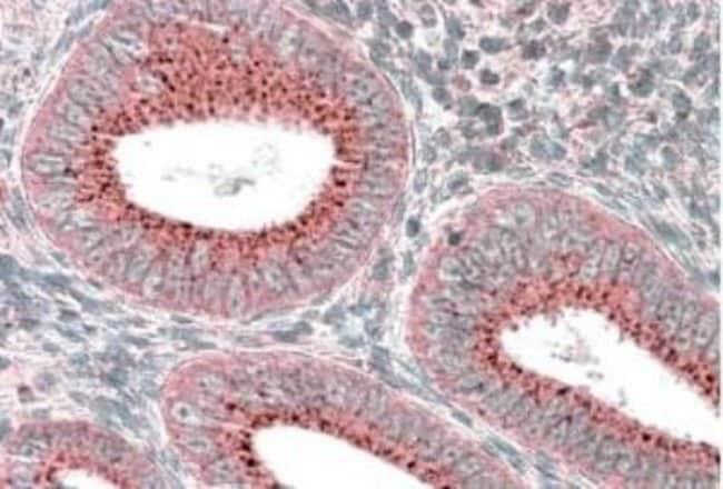 anti-SNX1, Polyclonal, Novus Biologicals 0.1mg; Unlabeled:Life Sciences