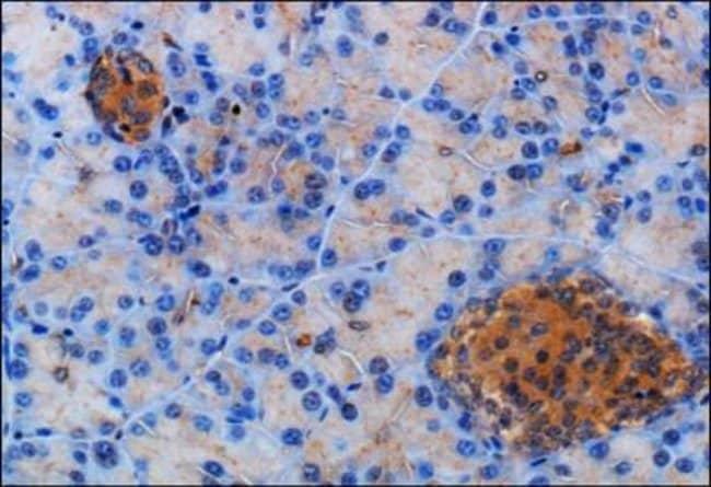 Somatostatin R2/SSTR2 Rabbit anti-Human, Mouse, Rat, Porcine, Polyclonal,