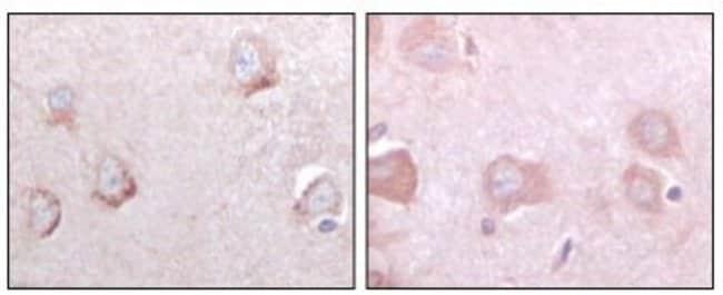 anti-SorLA, Clone: 3B6B11, Novus Biologicals 0.1mL; Unlabeled:Life Sciences
