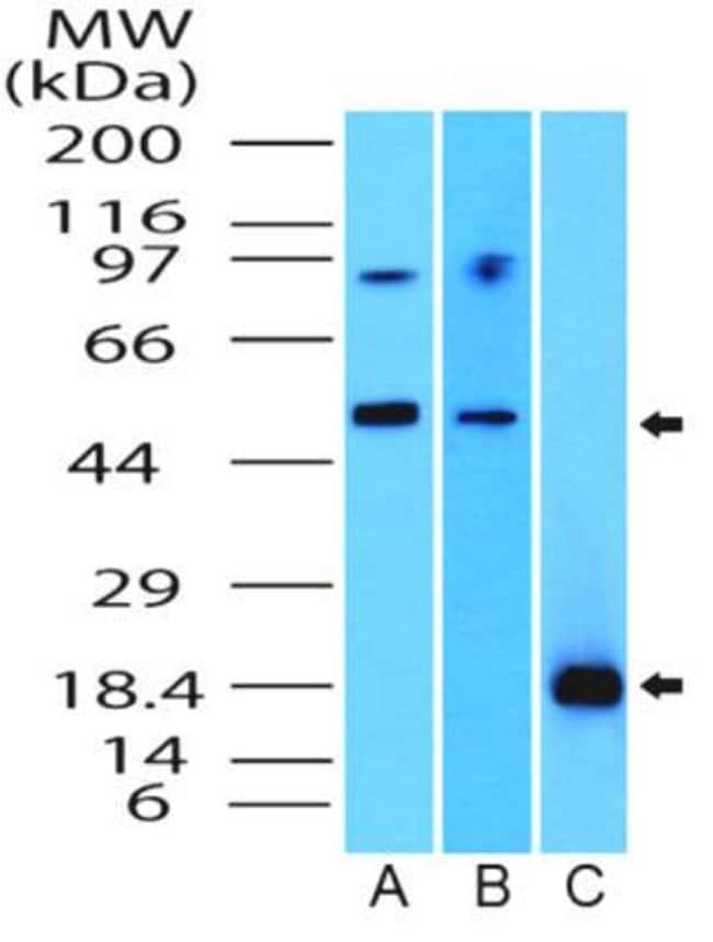 anti-SOX11, Polyclonal, Novus Biologicals:Antibodies:Primary Antibodies
