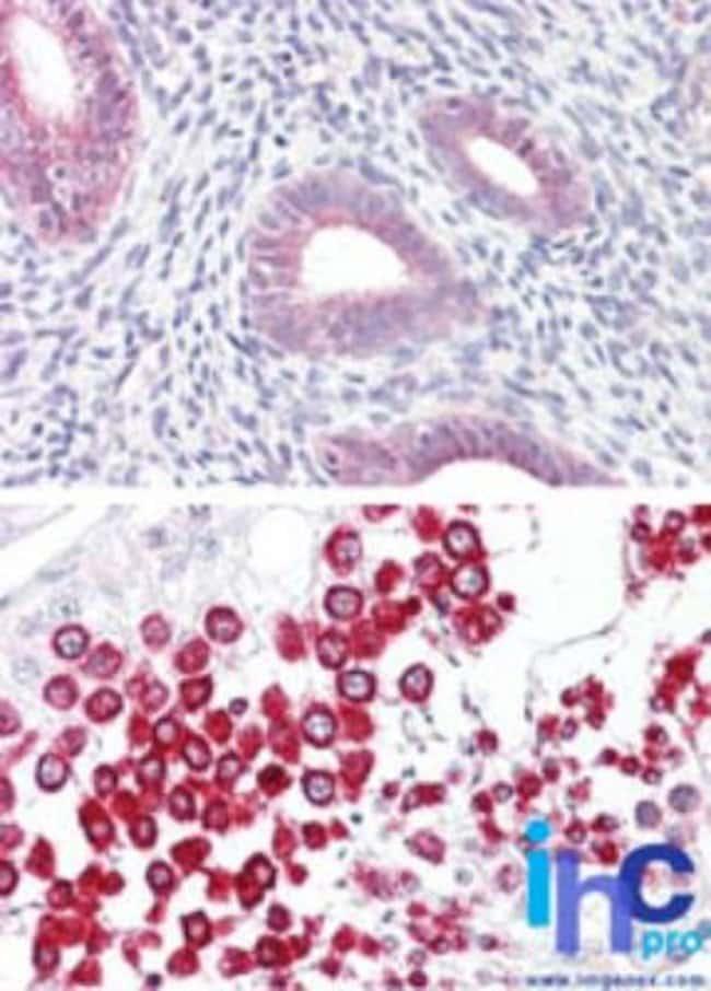 SOX17 Rabbit anti-Human, Mouse, Polyclonal, Novus Biologicals:Antibodies:Primary
