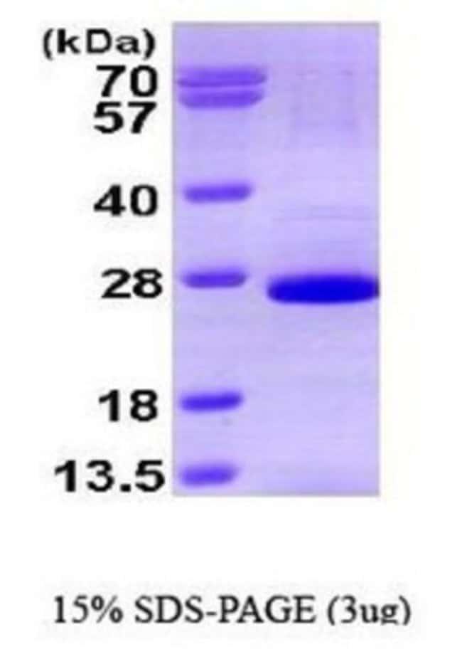Novus Biologicals Human SOX2 Protein 0.1mg; Unlabeled:Life Sciences