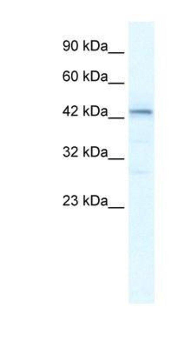 SP140L Rabbit anti-Human, Polyclonal, Novus Biologicals 20µL; Unlabeled