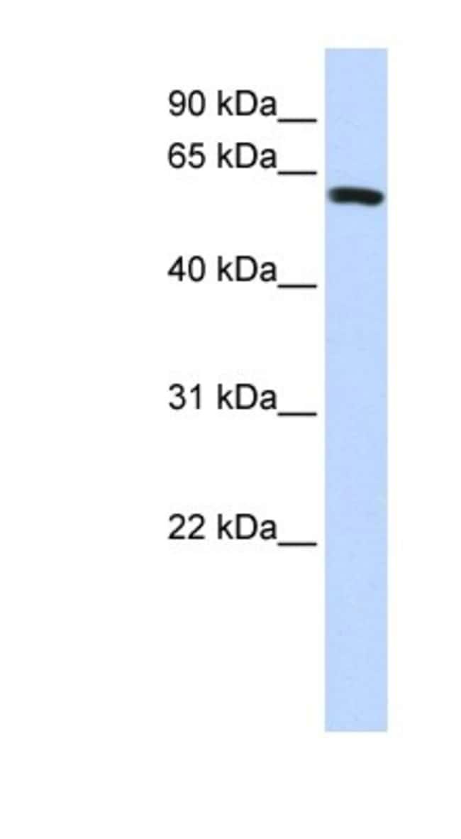SPAG8 Rabbit anti-Human, Polyclonal, Novus Biologicals 20µL; Unlabeled