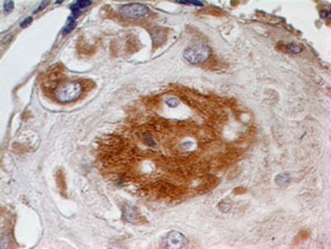 anti-SPARC, Polyclonal, Novus Biologicals:Antibodies:Primary Antibodies