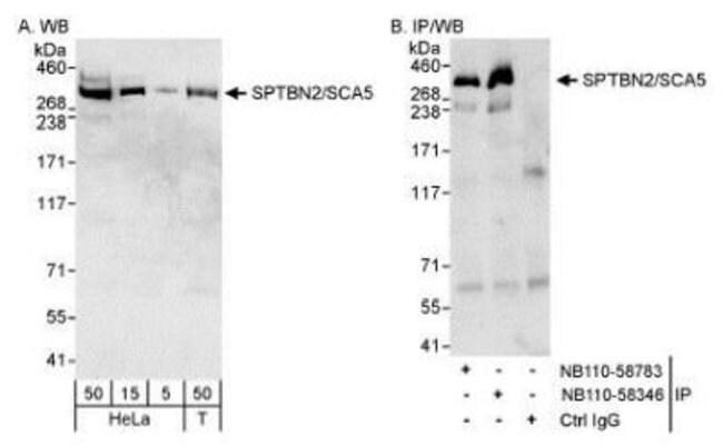 anti-Spectrin beta 3, Polyclonal, Novus Biologicals:Antibodies:Primary