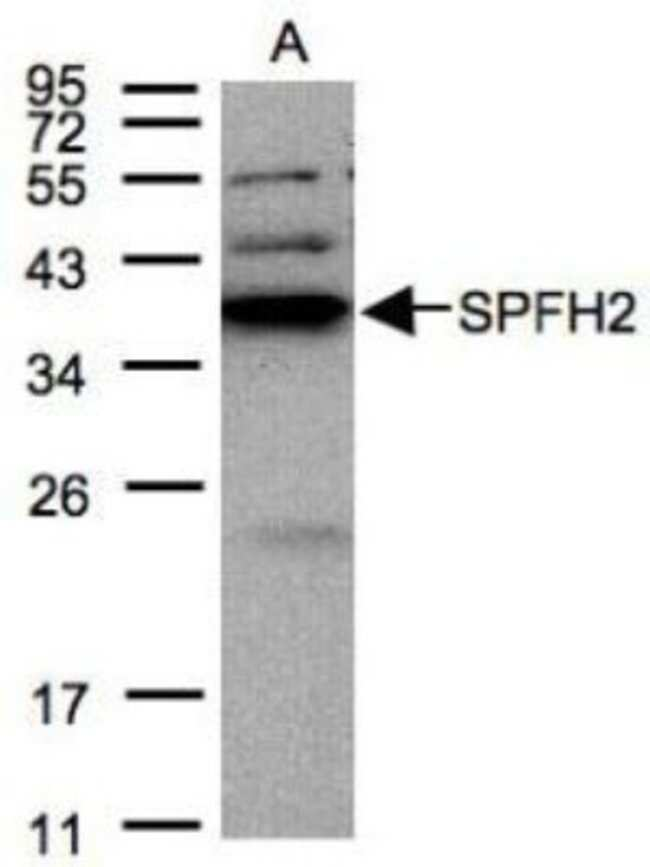 anti-SPFH2, Polyclonal, Novus Biologicals 0.1mL; Unlabeled:Life Sciences