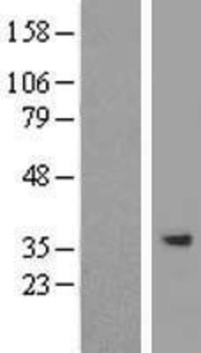 Novus Biologicals SPG21 Overexpression Lysate (Native) 0.1mg:Life Sciences