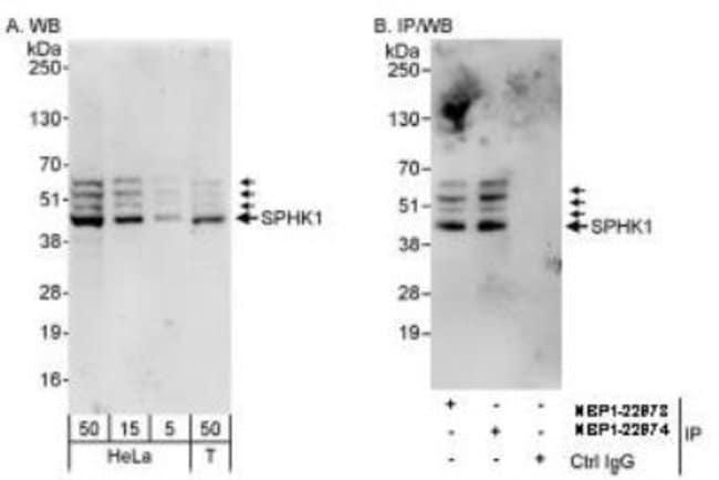 anti-Sphingosine Kinase 1/SPHK1, Polyclonal, Novus Biologicals:Antibodies:Primary