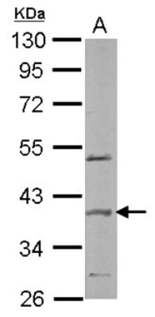 anti-SPOP, Polyclonal, Novus Biologicals 0.1mg; Unlabeled:Life Sciences