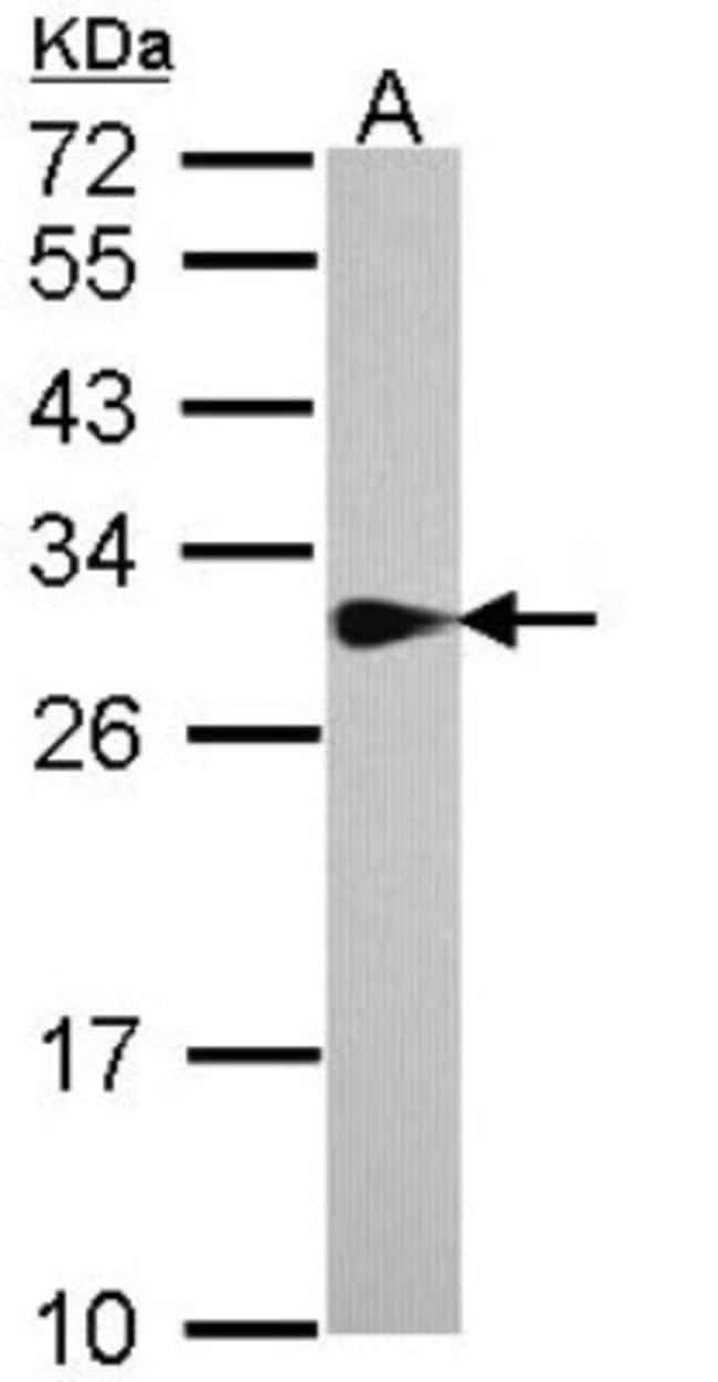 anti-SPR, Polyclonal, Novus Biologicals 0.1mg; Unlabeled:Life Sciences