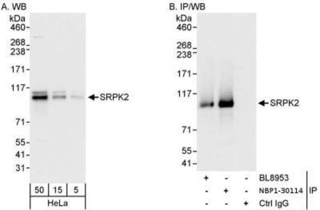 anti-SRPK2, Polyclonal, Novus Biologicals 0.1mL; Unlabeled:Antibodies