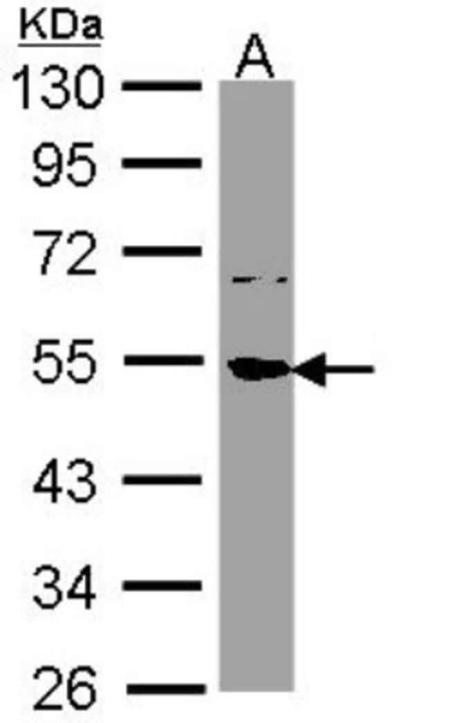 anti-SSB, Polyclonal, Novus Biologicals 0.1mL; Unlabeled:Antibodies