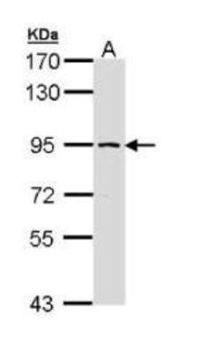 anti-SSRP1, Polyclonal, Novus Biologicals 0.1mg; Unlabeled:Antibodies
