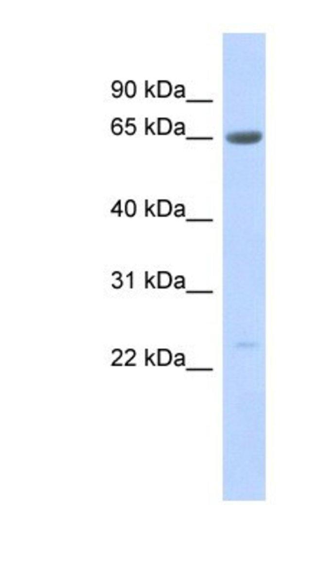 SSX7 Rabbit anti-Human, Polyclonal, Novus Biologicals 20µL; Unlabeled