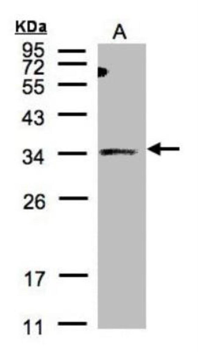 anti-ST3 beta-Gal alpha-2,3-Sialyltransferase 1/ST3GAL1/SIAT4A, Polyclonal,