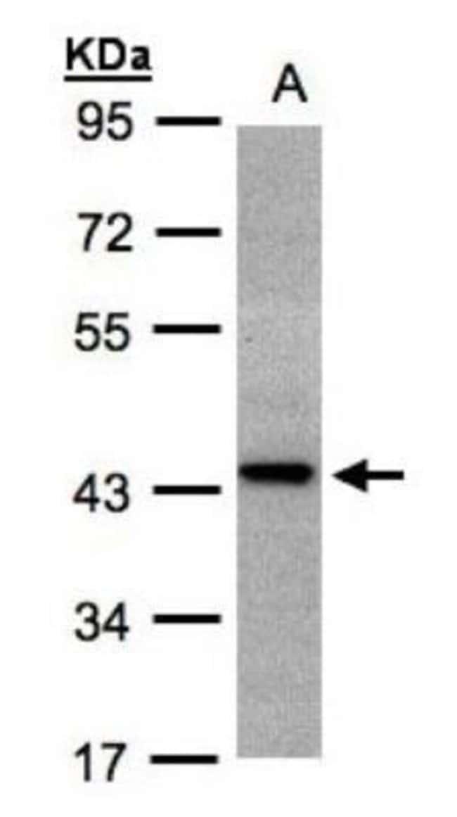 anti-ST3 beta-Gal alpha-2,3-Sialyltransferase 2/ST3GAL2, Polyclonal, Novus