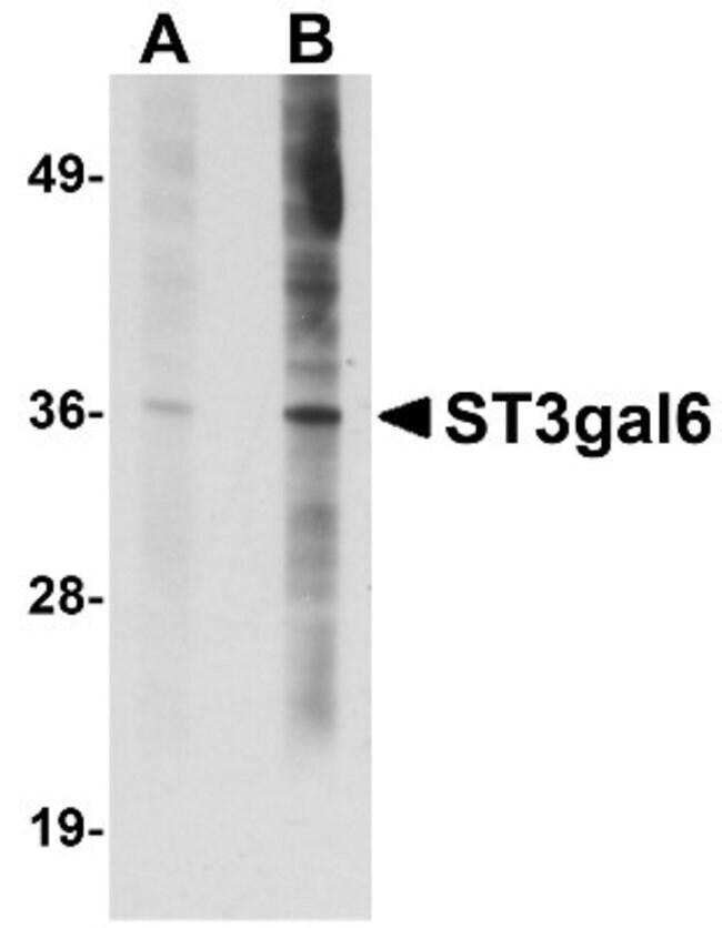 anti-ST3GAL6, Polyclonal, Novus Biologicals 0.1mg; Unlabeled:Life Sciences