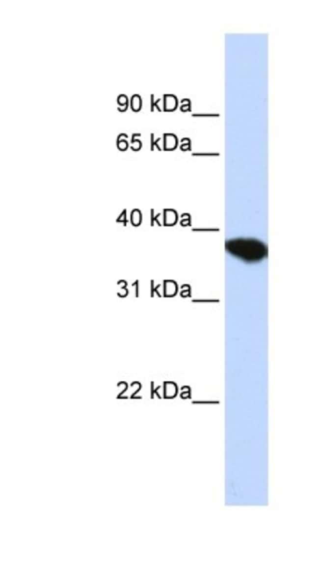 ST8 alpha-2,8-Sialyltransferase 4/ST8SIA4 Rabbit anti-Human, Mouse, Rat,